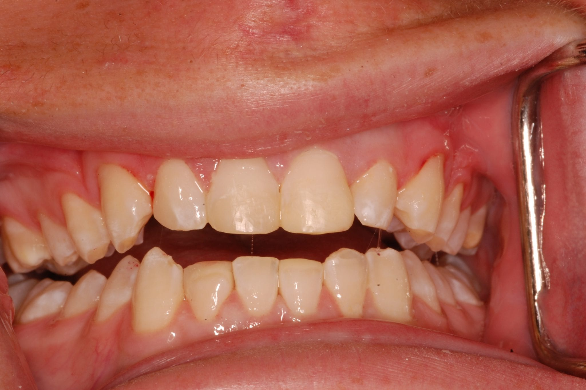 South Knoxville Dentistry Services After 08