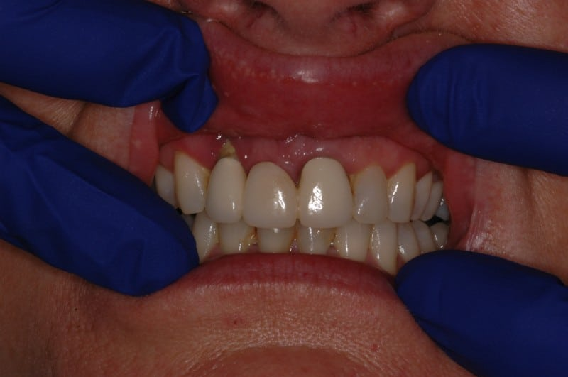 South Knoxville Dentistry Services Before 06