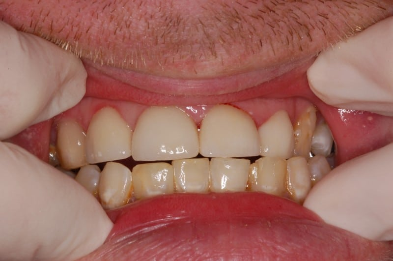 South Knoxville Dentistry Services After 07