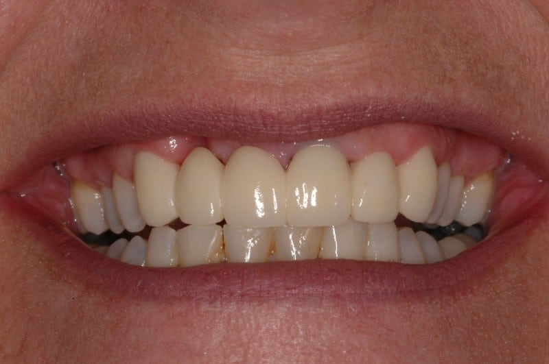 South Knoxville Dentistry Services After 06