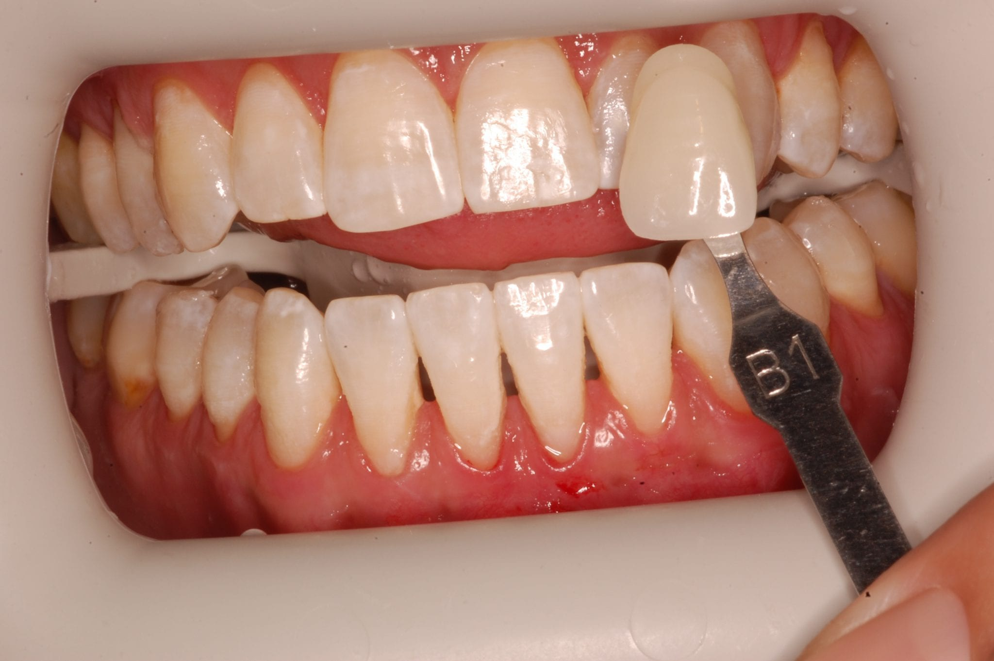 South Knoxville Dentistry Services After 10