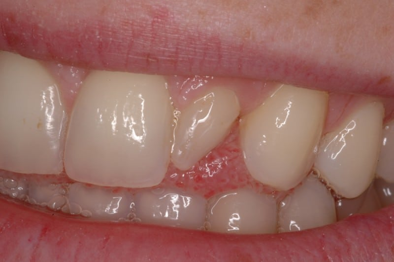 South Knoxville Dentistry Services Before 05