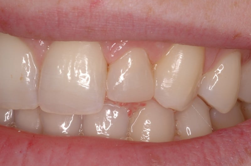 South Knoxville Dentistry Services After 05