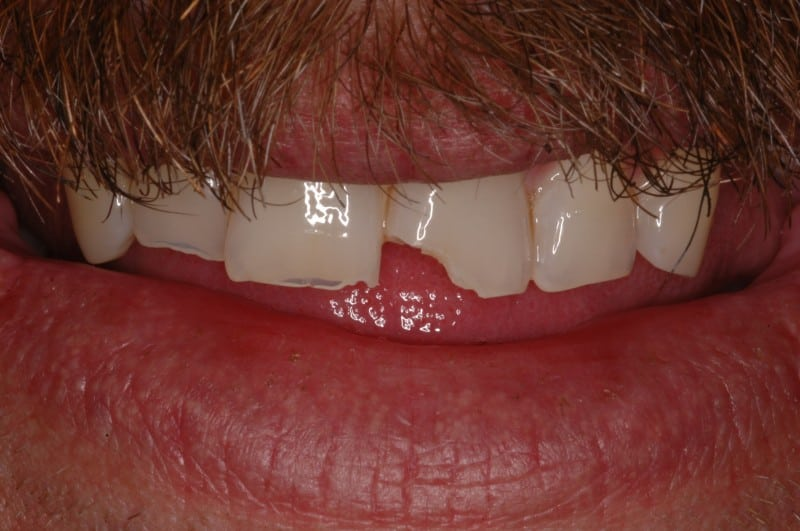 South Knoxville Dentistry Services Before 03