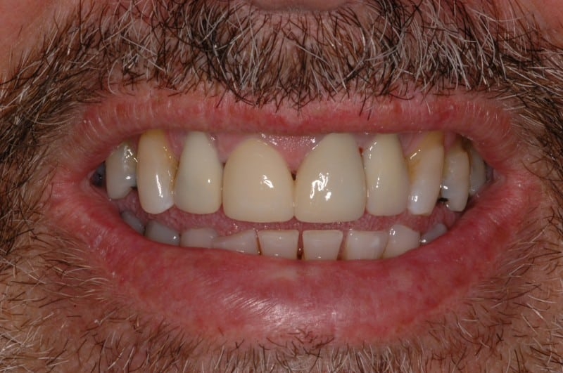 South Knoxville Dentistry Services After 02