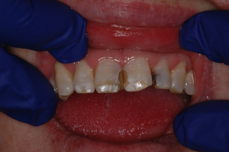 South Knoxville Dentistry Services Before 04